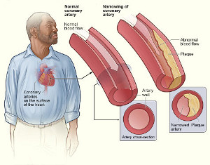 Plaque buildup in the arteries that nourish the heart, a condition called coronary atherosclerosis, narrows the arteries and increases the risk for heart attack.